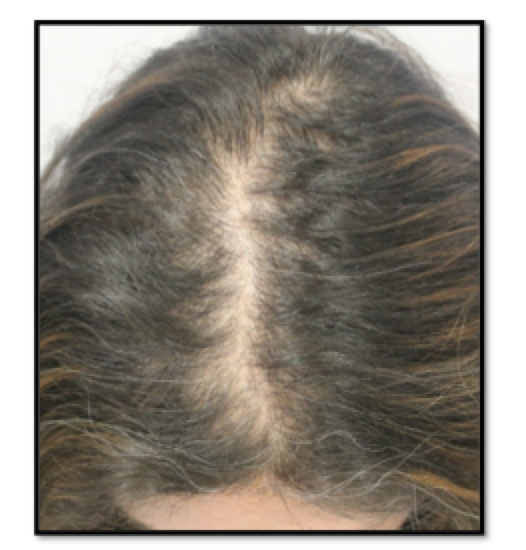 Female Pattern Hair Loss Canadian Hair Loss Foundation