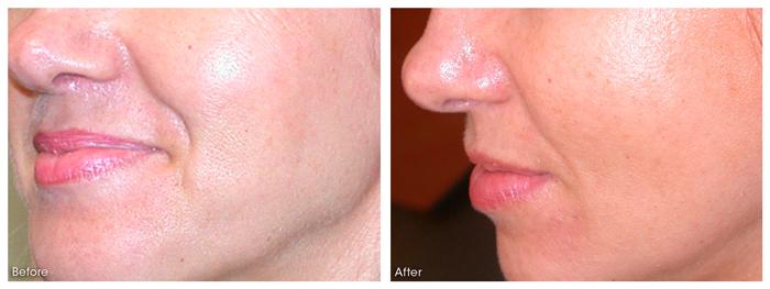 dermaroller-skin-tightening-1-WEB.jpg