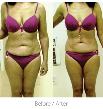 This patient Came for TORc treatments 2 x weekly for 6 weeks. She used TORC on 4 body areas