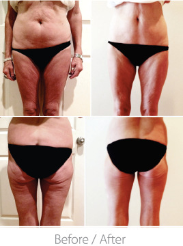 This patient came for TORC treatments 2 x weekly for 9 weeks. She used TORC on 4 body areas.