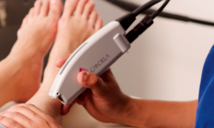 Laser for Spider Veins