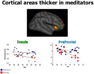 brain on meditation.jpg