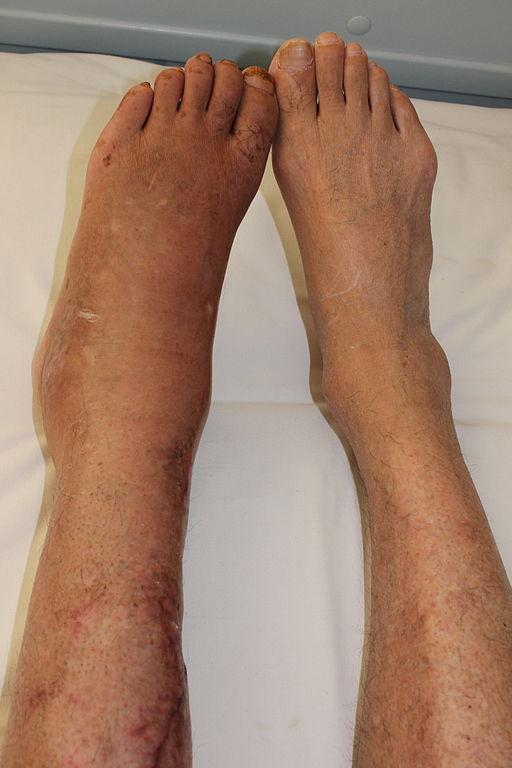 a CRPS PATIENT 6 MONTHS AFTER leg fracture