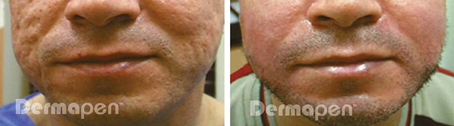 before-after-acne-scarring.jpg