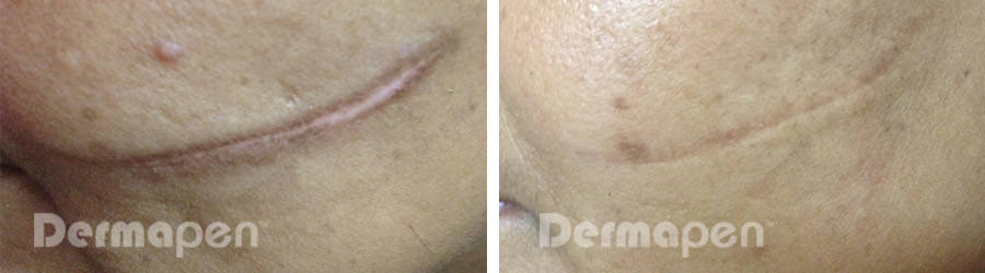 before-after-cut-scar.jpg