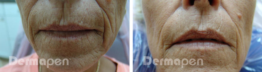 before-after-woman-lips.jpg