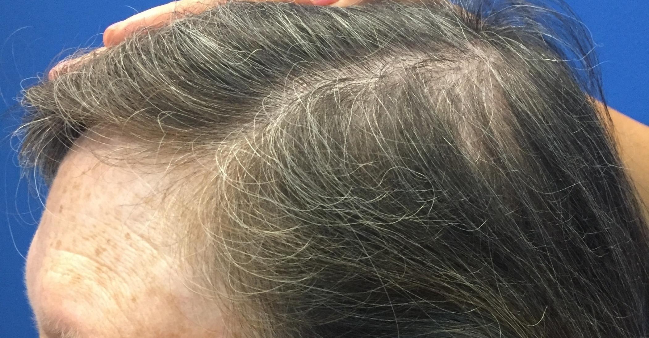 After Hair3_3:4:16.JPG