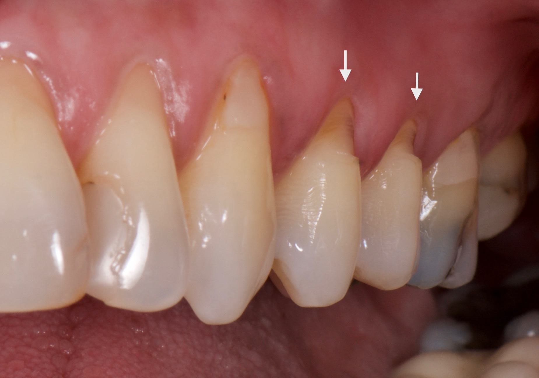 "Whitening gel on exposed roots can make whitening painful and force people to ""tap out"" before the gel can work."