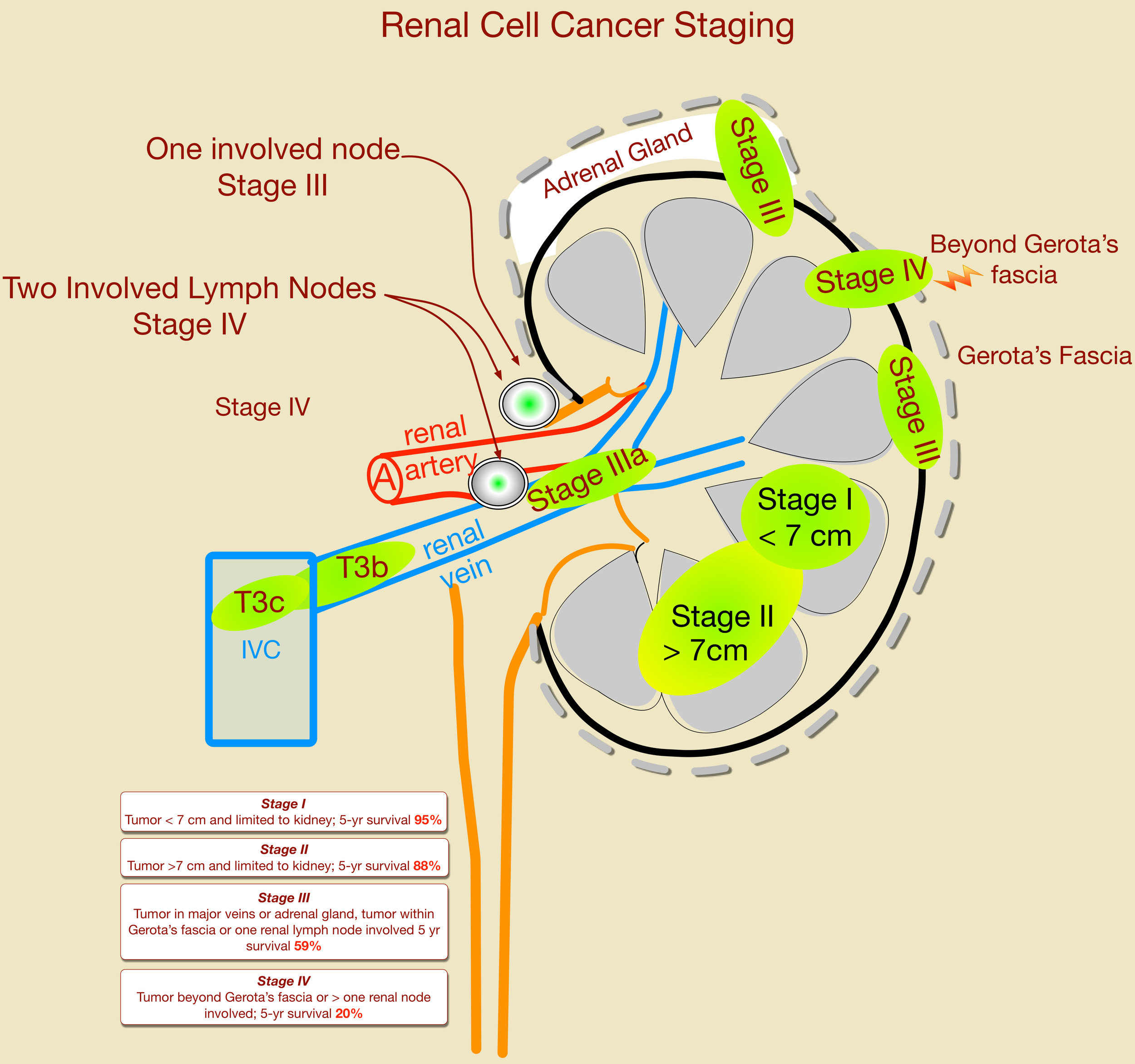 The Cartoon above reveals the impact of the stage (extent) of kdney (Renal cell) cancer on the approximate 5-year survival. Diagram by Glenn Tisman, M.D.