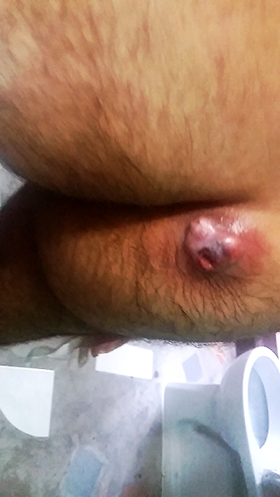 Cyst burst into a crater in my ass.