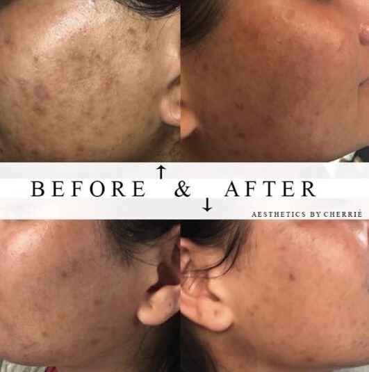 Adult Acne and MIcrodermabrasion with a peel