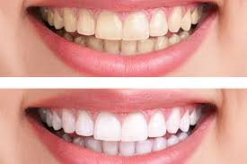 Desired whitening can be achieved through several sessions of in-house whitening!