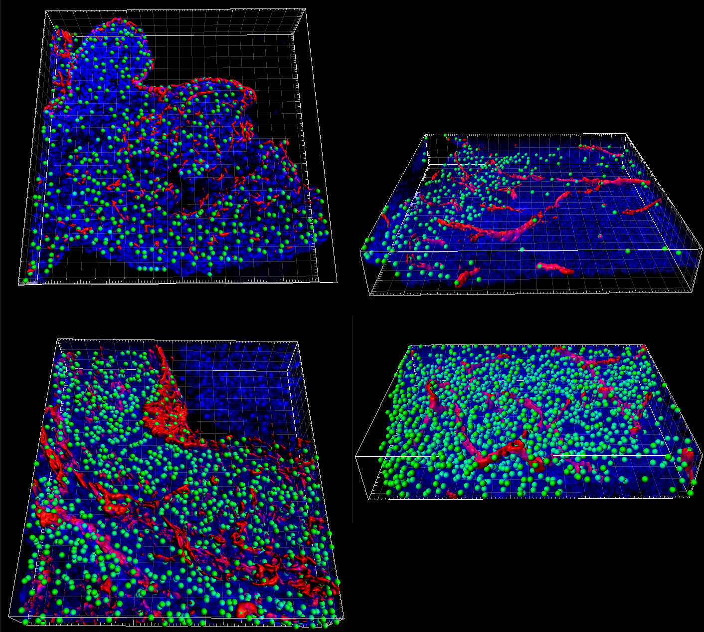 Thick sections (top) and reconstructed serial sections (bottom) of a mouse heart region (left) and mouse brain region (right) in comparison, showing CD31-positive vasculature (red),spot detected Ki67-positive nuclei (green), and DAPI (blue). In particular for the brain regionthe Ki67 signal is much more extensivein the serial sections (bottom right)than in the thick section (top right).  [Image courtesy of Sho Fujisawa,Memorial Sloan Kettering Cancer Center]