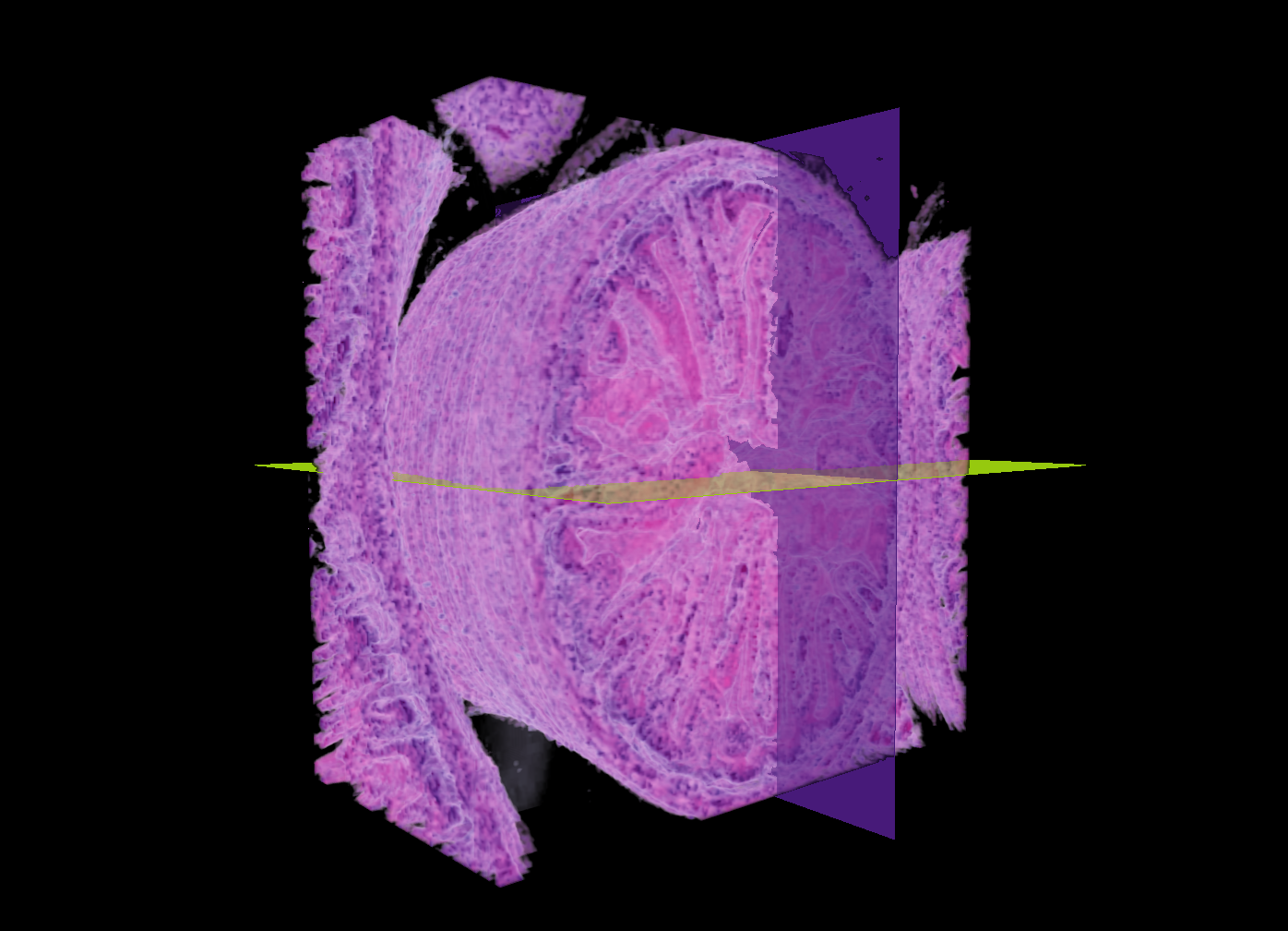 3D Reconstruction of the Colon of a   Mouse Embryo