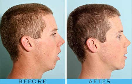 The photo on the left was before beginning nose breathing, after learning how to breathe correctly through the nose the facial features and dentition develop normally on the right.