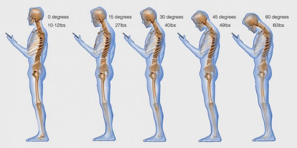 Text+Neck+Syndrome.png
