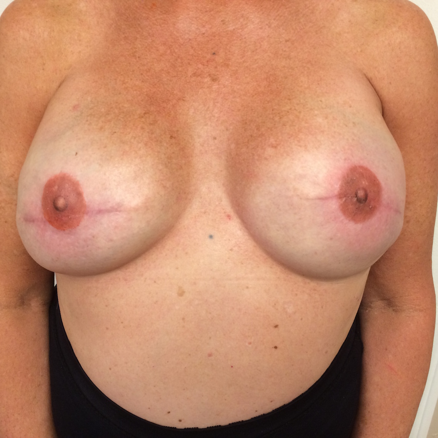 3D nipple tattoos.JPG