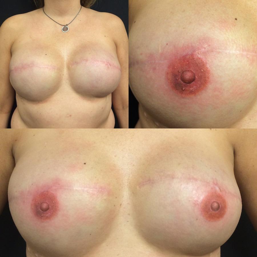 3D Nipple Tattoo 1.jpg