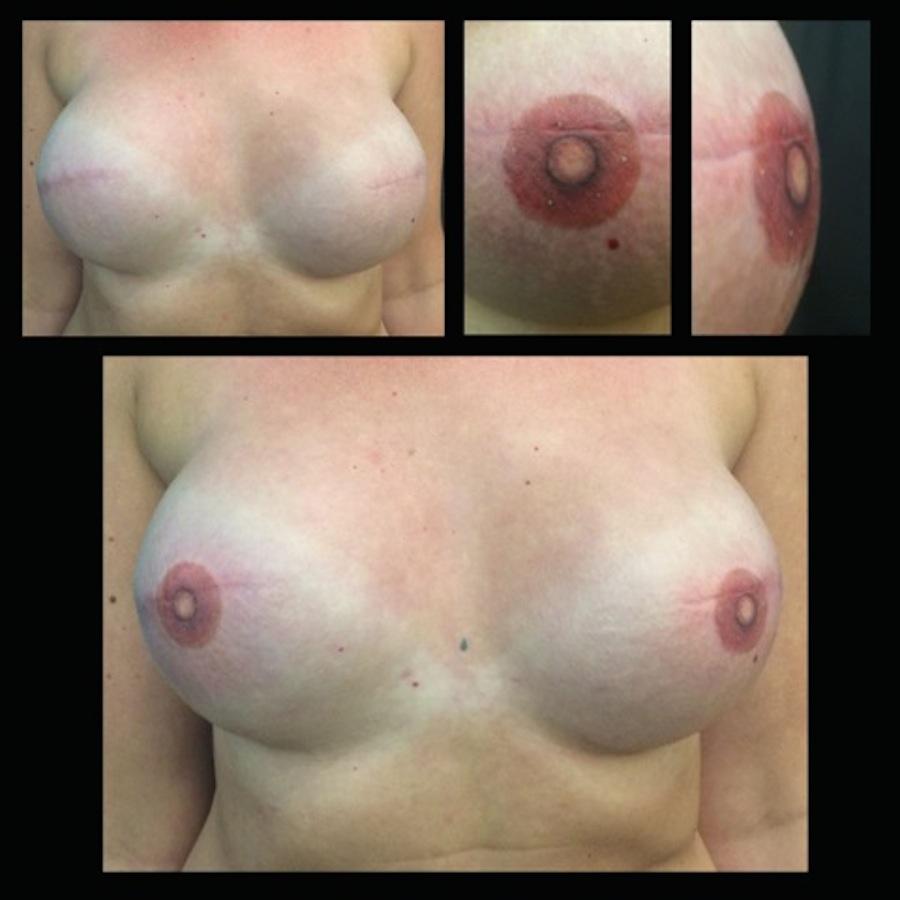 3D Nipple Tattoo 7.JPG