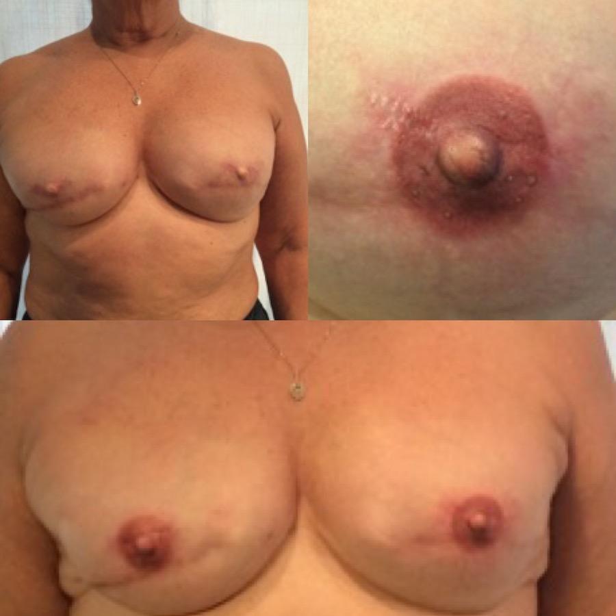 3D Nipple Tattoo 19.jpg