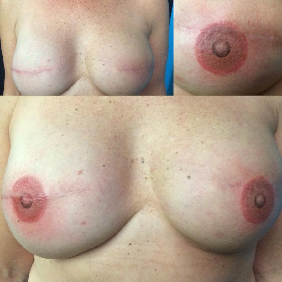 3D Nipple Tattoo 20.jpg
