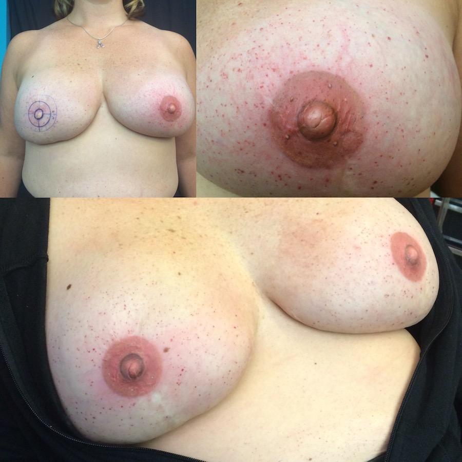 3D Nipple Tattoo 17.jpg