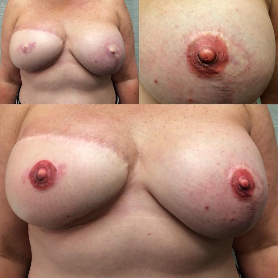 3D Nipple Tattoo 18.jpg