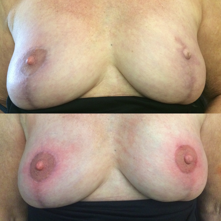 3D Nipple Tattoo 15.jpg