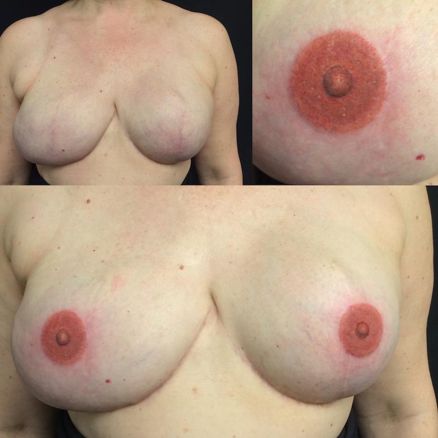 3D Nipple Tattoo 14.jpg