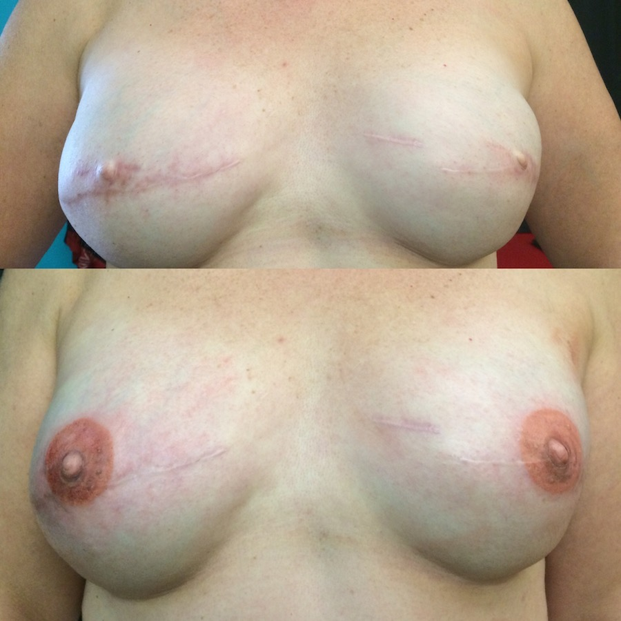 3D Nipple Tattoo 13.jpg