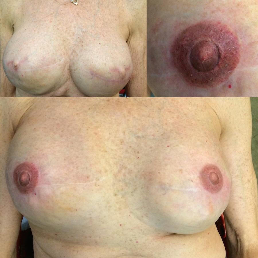 3D Nipple Tattoo 11.jpg