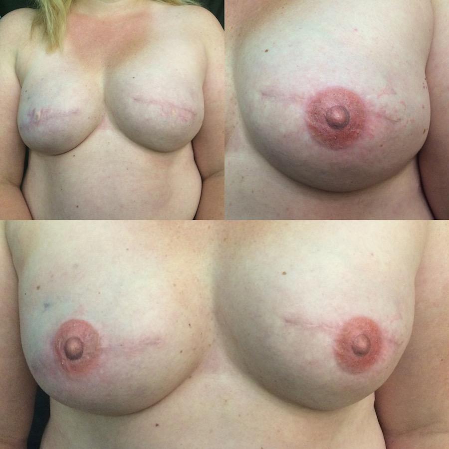 3D Nipple Tattoo 4.jpg