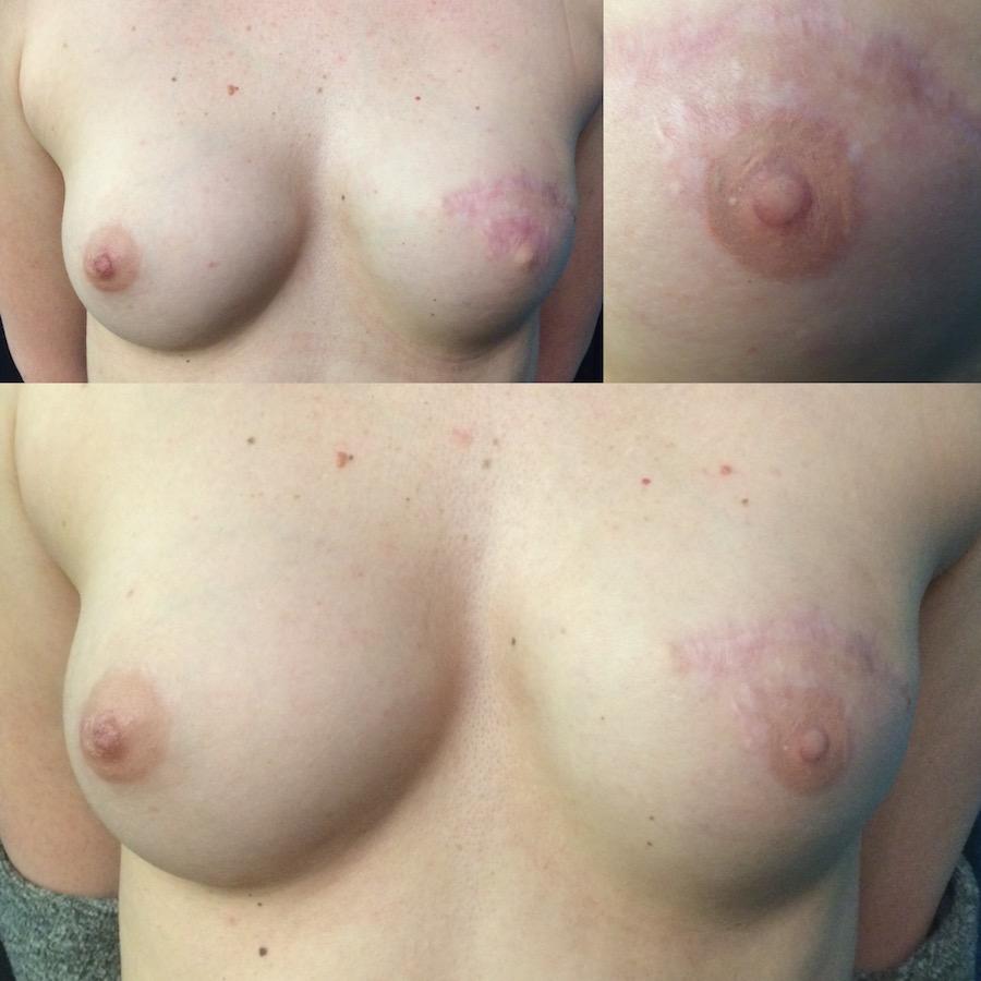 3D Nipple Tattoo 3.jpg