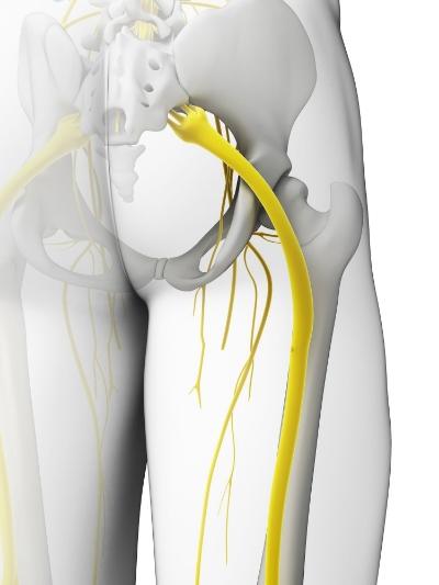 Piriformis - Sciatic Nerve.jpg