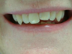 Composite veneers - Before