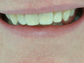 Composite Veneers - After