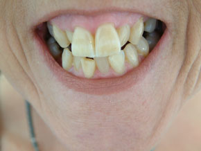 compsite veneers plus whitening - Before