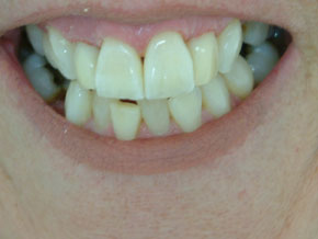 Composite VEneers plus whitening - After