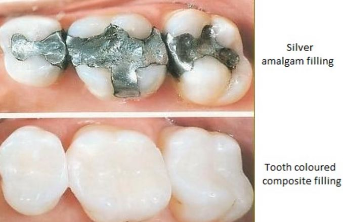 Composite-Fillings.JPG