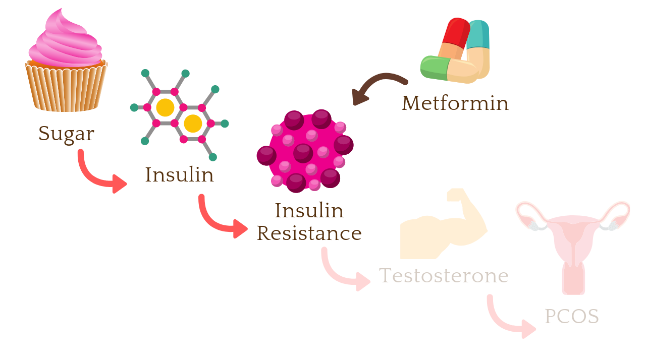 Metformin is a diabetes drug that work on insulin resistance, thereby improving hormone regulation in women with PCOS
