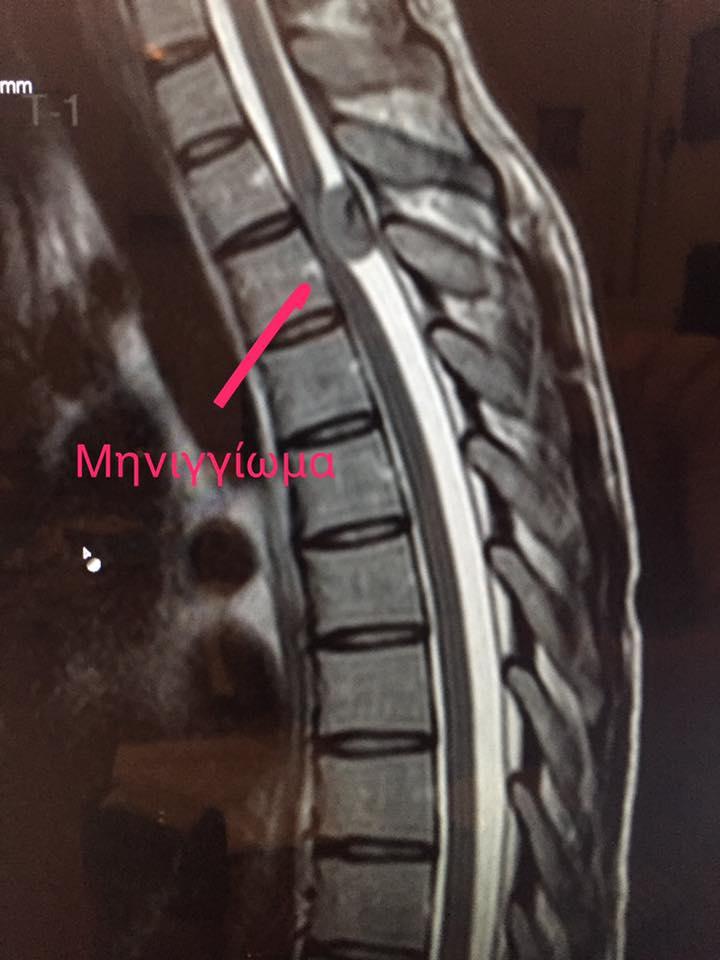 Περιστατικό 1ο — Προεγχειρητική μαγνητική τομογραφία (MRI) θωρακικής μοίρας σπονδυλικής στήλης (sagittal view). Αναδεικνύεται το μηνιγγίωμα στο επίπεδο του Θ3 και η επακόλουθη πίεση του νωτιαίου μυελού.