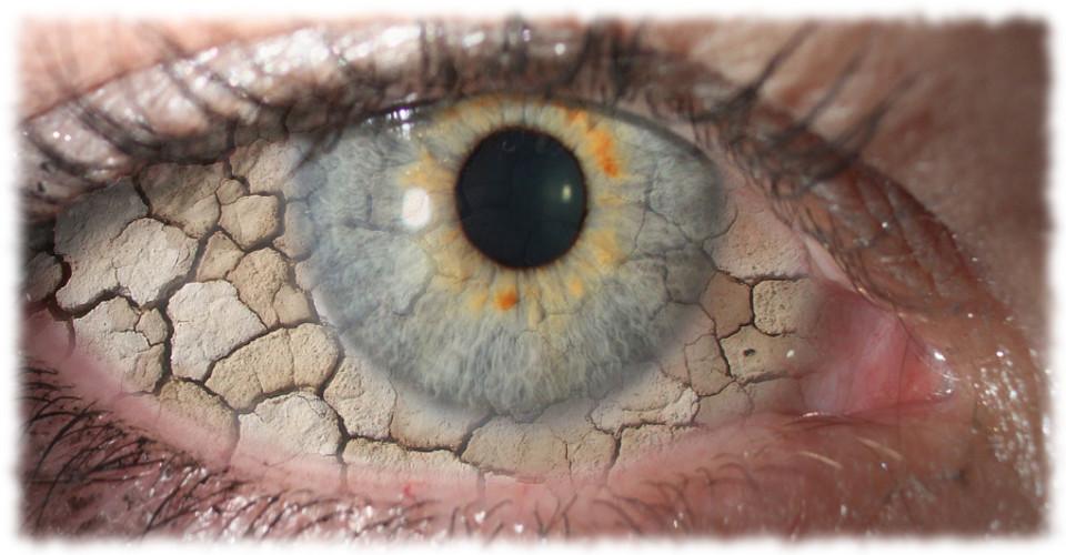 dry-eye-.jpg