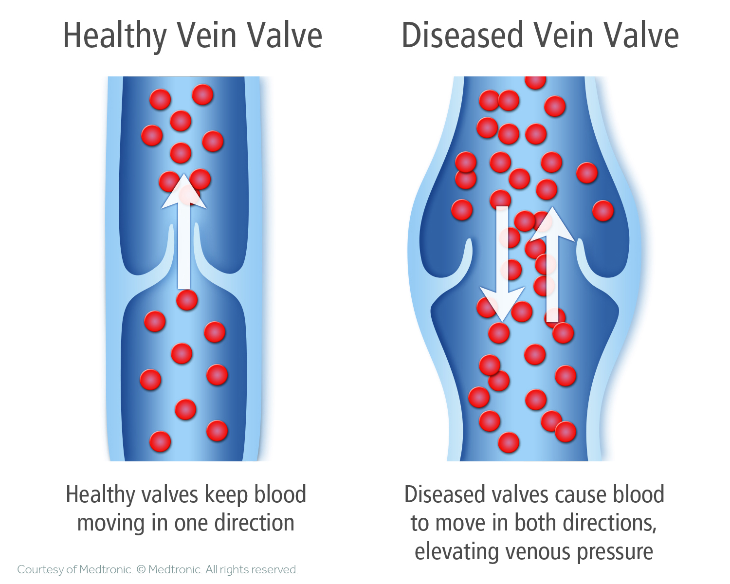 Healthy-vs.-Diseased-Vein-Valve-2-Illustration.jpg