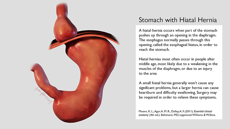 Stomach with Hiatal Hernia
