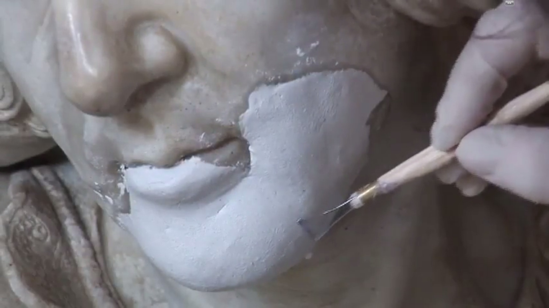 The reconstruction of Anne de la Pierre's chin
