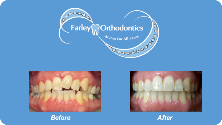 Woodlands-TX-Orthodontist-Farley-Orthodontics-Braces-1.png