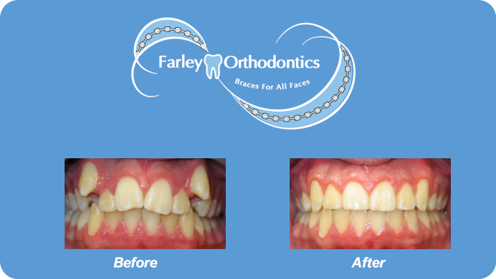 Woodlands-TX-Orthodontist-Farley-Orthodontics-Braces-2.png