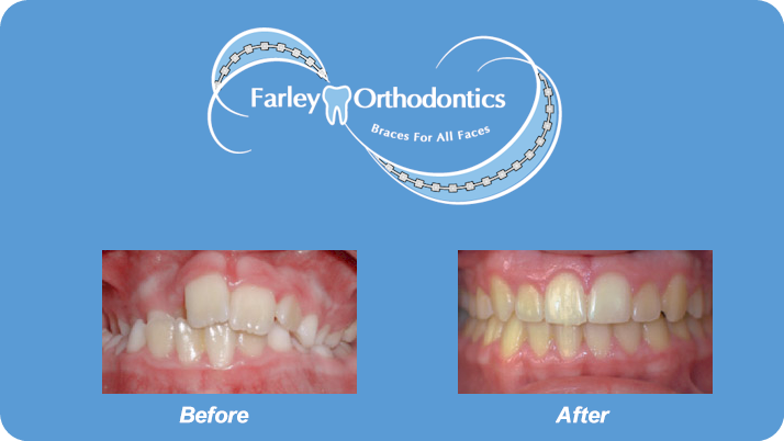 Woodlands-TX-Orthodontist-Farley-Orthodontics-Braces-4.png