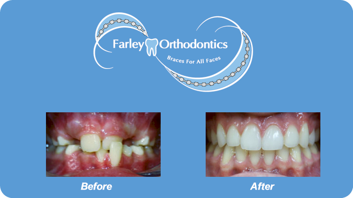 Woodlands-TX-Orthodontist-Farley-Orthodontics-Braces-5.png