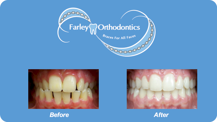 Woodlands-TX-Orthodontist-Farley-Orthodontics-Braces-3.png